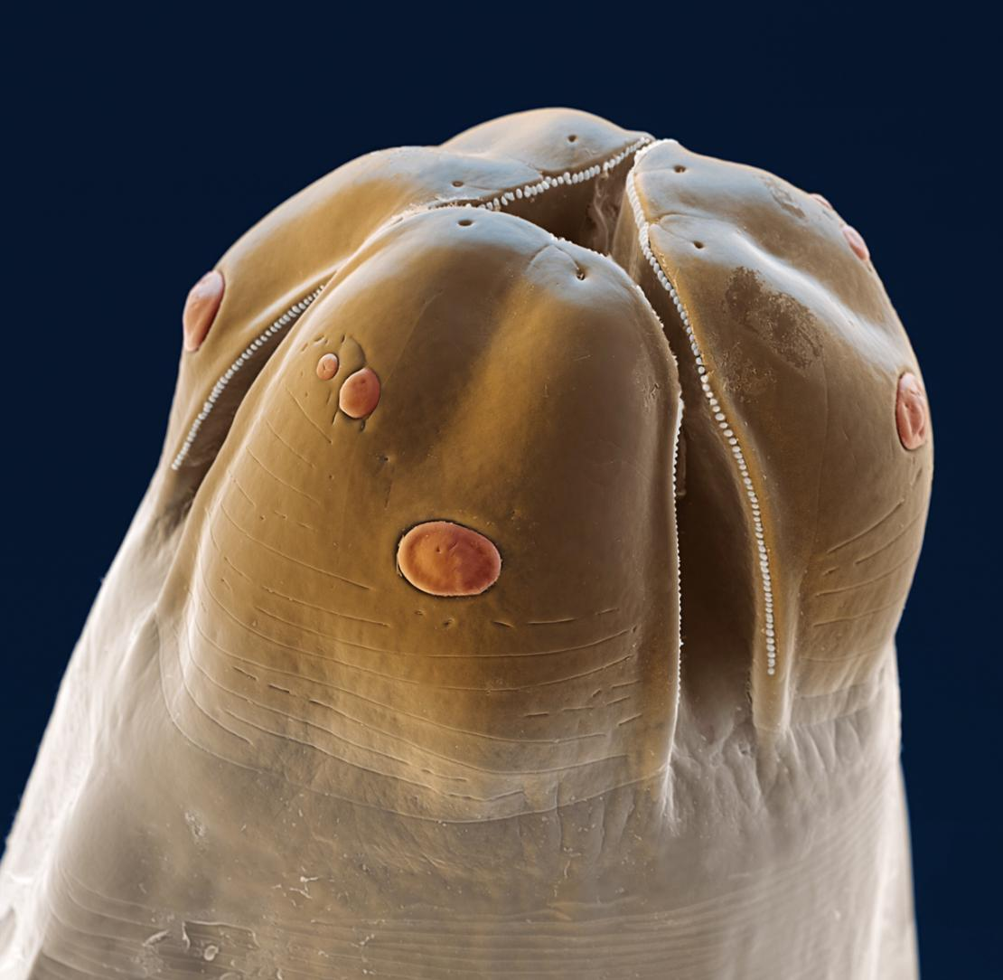 An image of a roundworm under a microscope